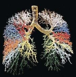 Yapay bronşla akciğer kanseri tedavi edildi